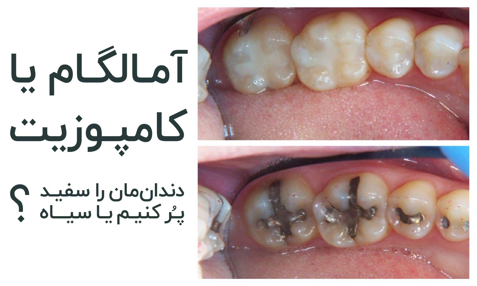آمالگام یا کامپوزیت؟ دندان را سفید پر کنیم یا سیاه؟