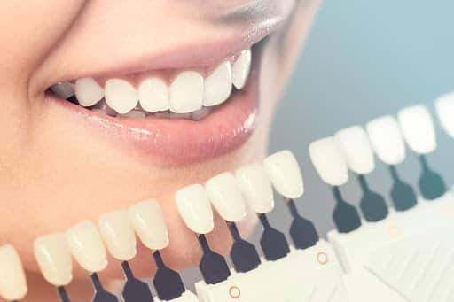 Tooth laminate