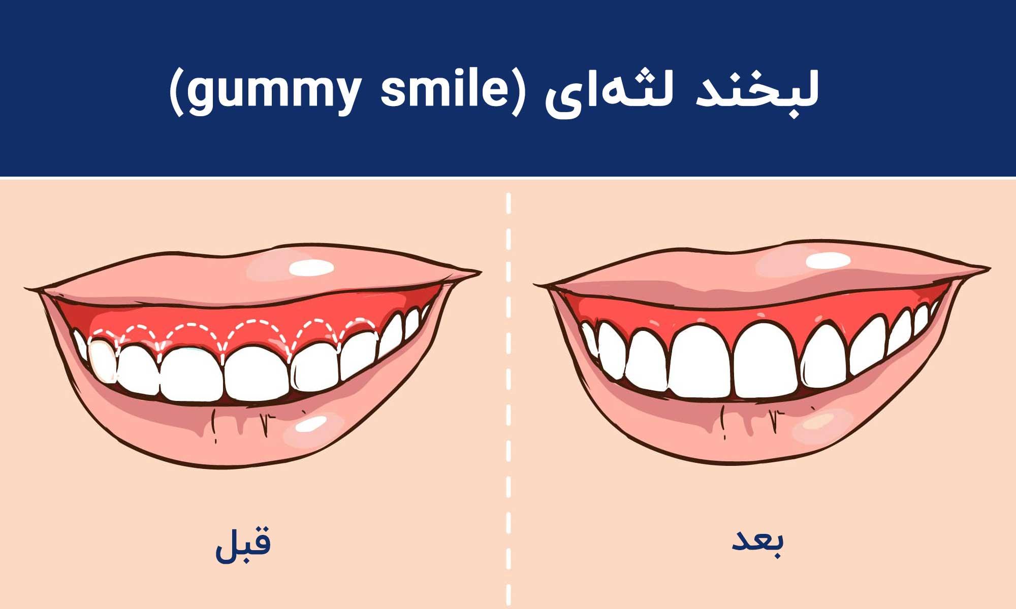 لبخند لثهای (gummy smile)