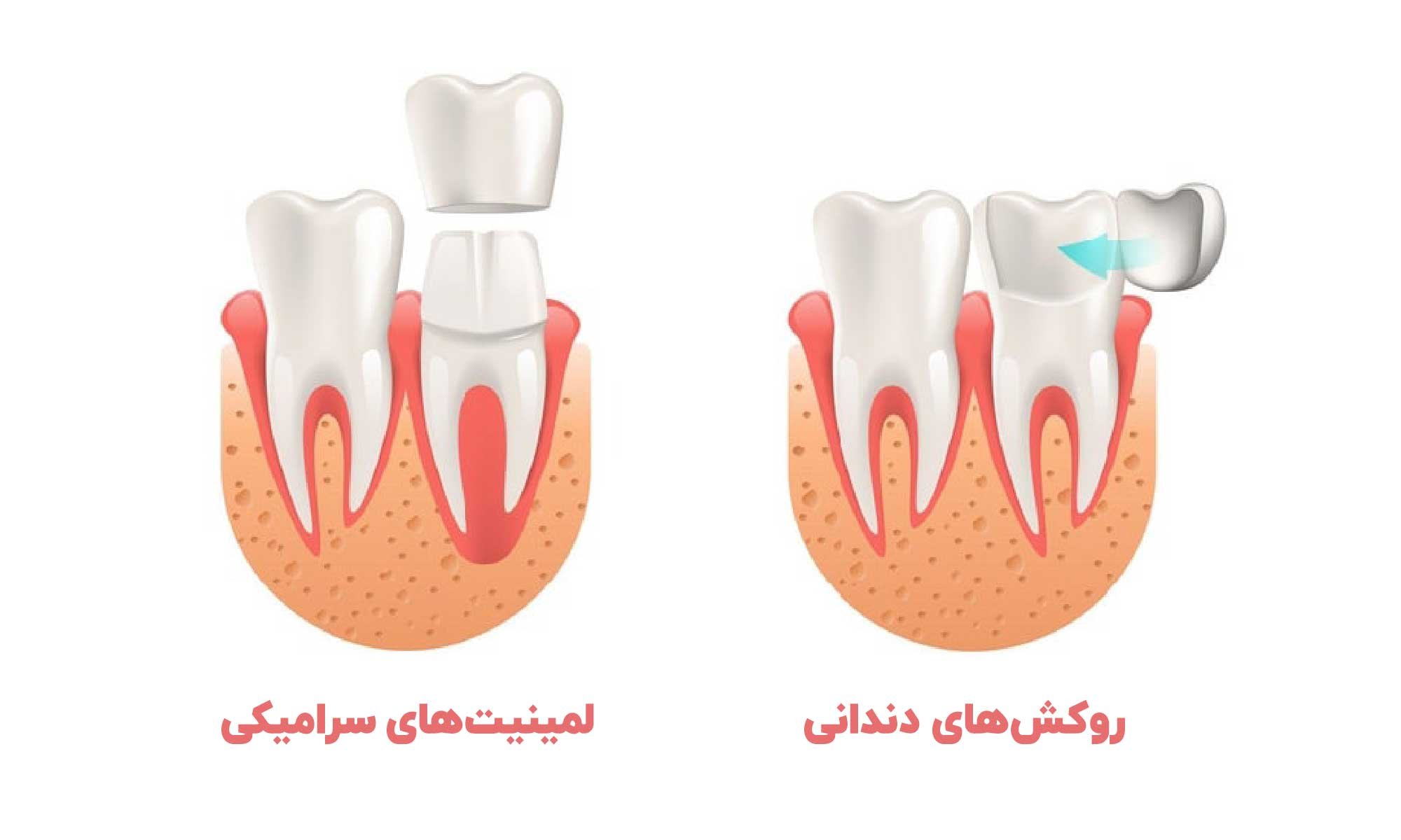 تفاوت روکش دندانی و لمینت سرامیکی